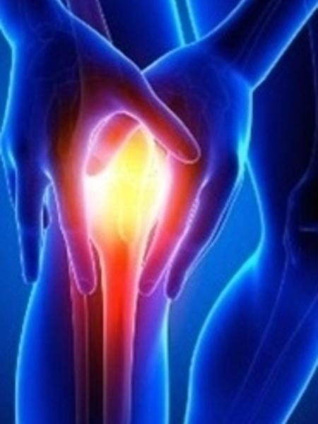 Arthritis Essential Oil Blend